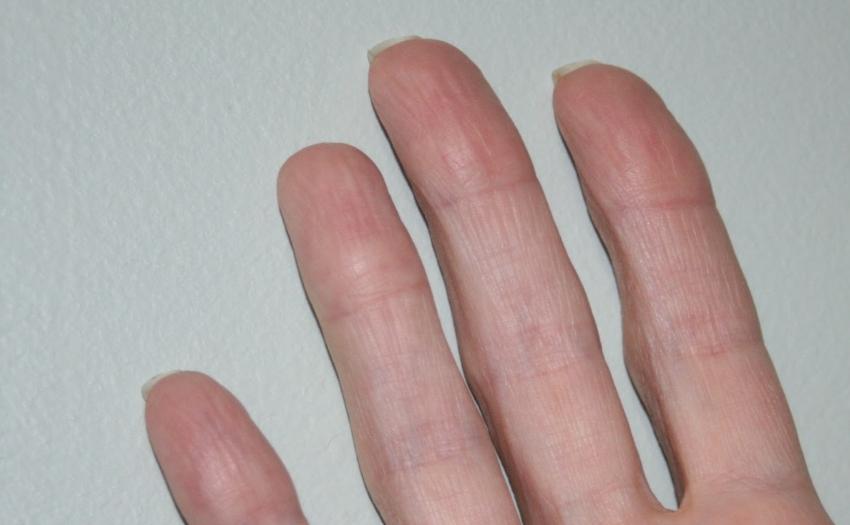 Не знімаються відбитки пальців