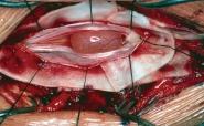 Що таке епендимома спинного мозку?
