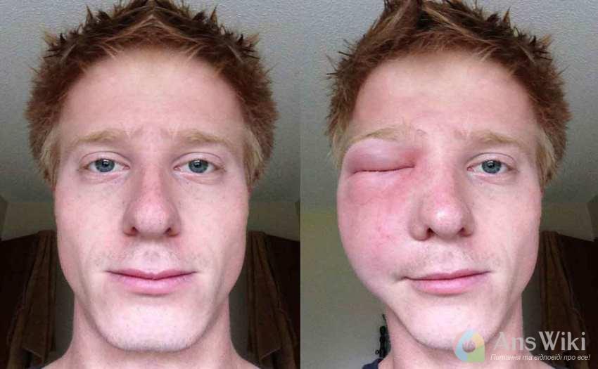 Хлопець до і після укусу бджоли