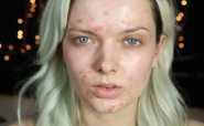 Непереносимість лактози і акне (прищі) на обличчі. Чи є взаємозв'язок?